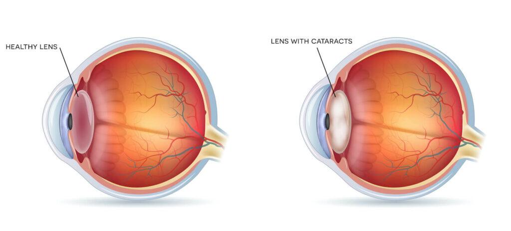 Illustration of healthy eye vs eye with cataracts